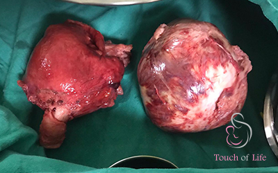 multiple-fibroids