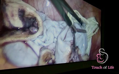 large-ovarian-cyst